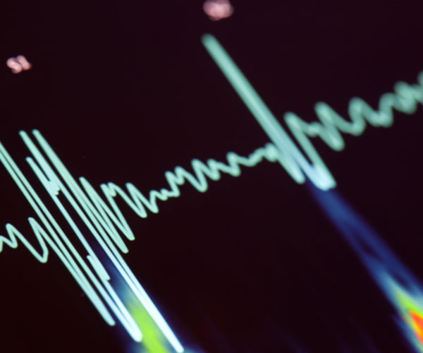 Heart Health Stock